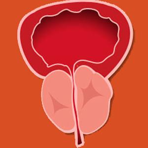 Hiperplasia Benigna de Póstata (HBP)