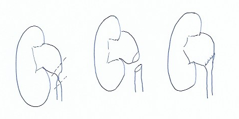 Figura- 3 - Pieloplastia