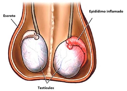Orquiepididimitis - aeuexp
