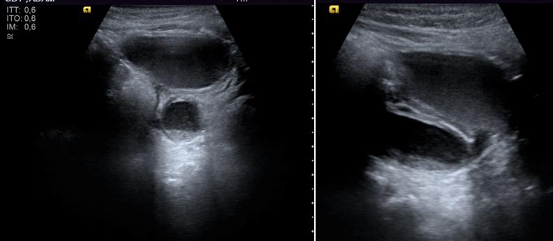 Figura 2. Dilatación importante del uréter distal en la primera ecografía postnatal